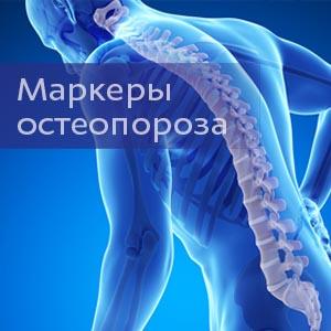 Маркеры остеопороза