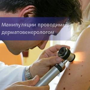 Манипуляции проводимые дерматовенерологом